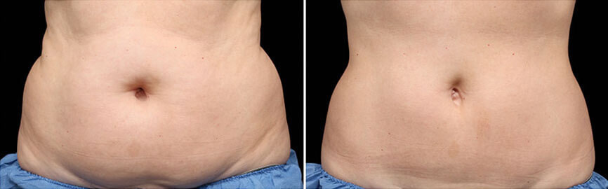 Dr Melinda Silva COOLSCULPTING before and after stomach